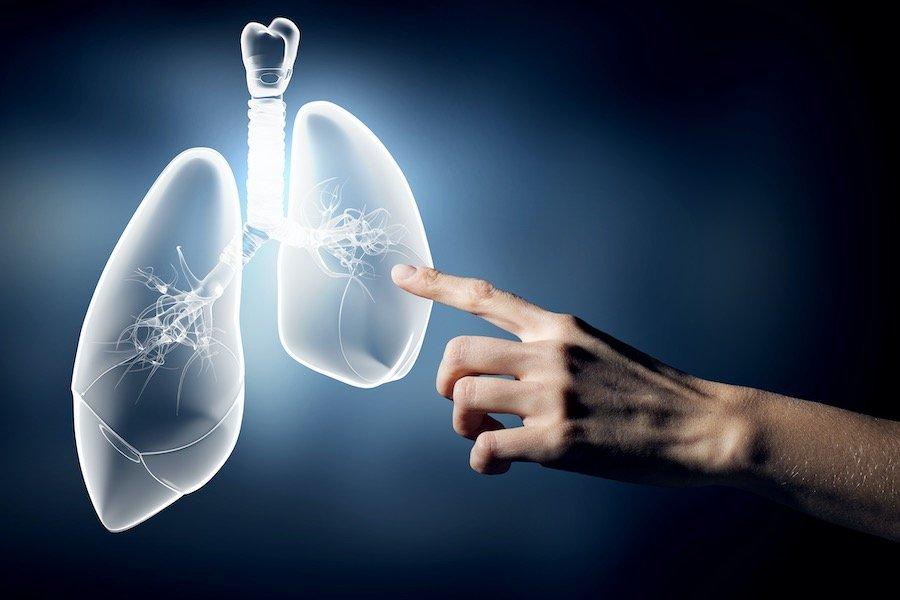 Lung Cancer Online Information