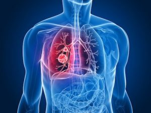 Lung Cancer All you have to know