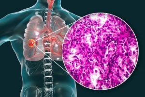 Lung Cancer Histopahtology