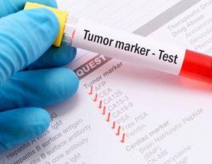Tumore marker test