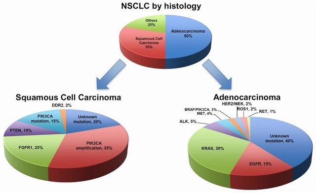 NSCLC by histology